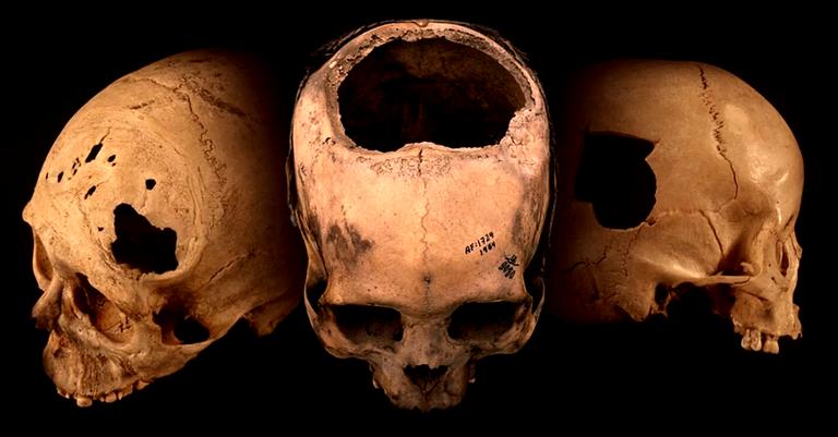 Crânios incas que foram analisados durante o estudo