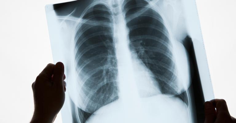 A descoberta deu o pontapé inicial para o nascimento da radiologia diagnóstica