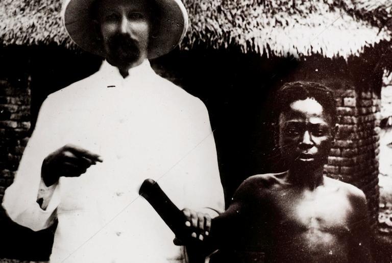 Funcionário colonial e vítima de mutilação, 1911