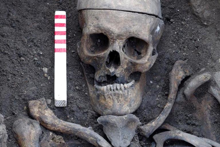 O esqueleto maltratado de um boxeador que viveu no século 19